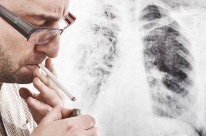 フランス人の死因のおよそ13パーセントが喫煙によるとの調査結果